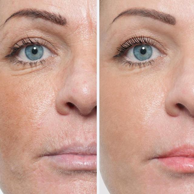 Биоревитализация кожи лица цена